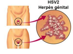 Herpès génital