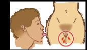 Transmission du VIH par voie sexuelle