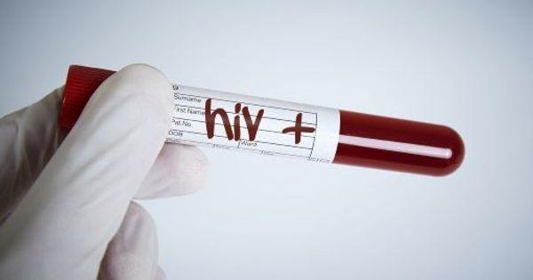 La primo-infection par le VIH