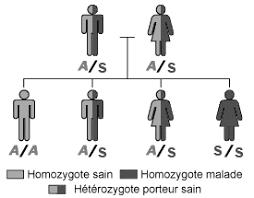 Gingembre et drépanocytose