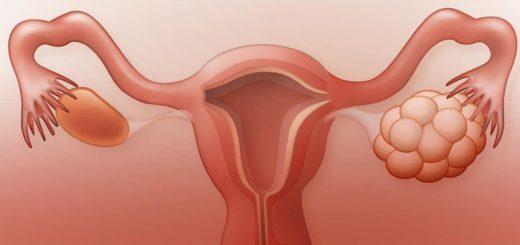 ovaires polykystiques traitement naturel