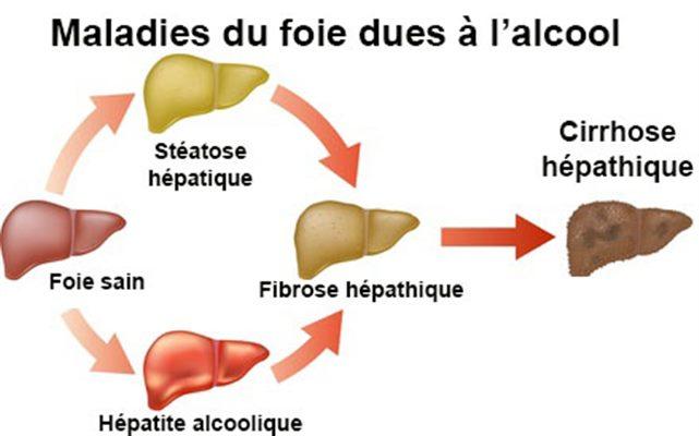 Stéatose de foie : Cure pour mal du foie après avoir beaucoup bu